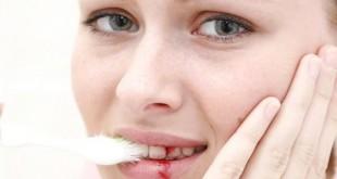 التهابات اللثة